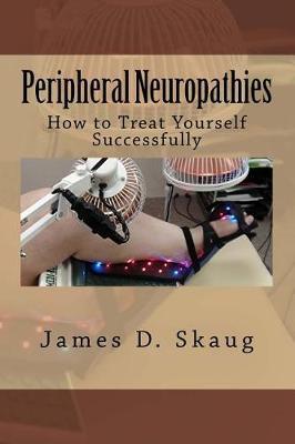 Peripheral Neuropathies
